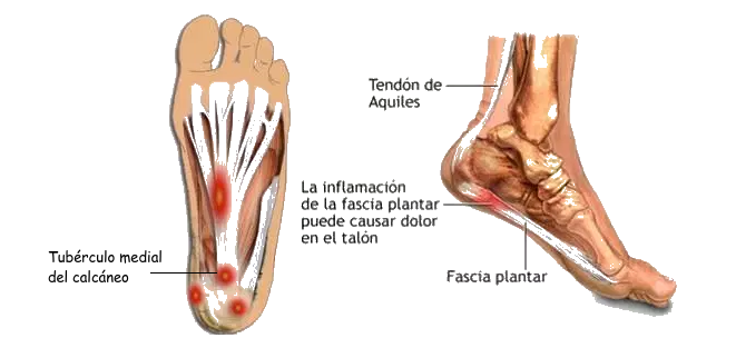 Dolor de la planta del pie en el talon