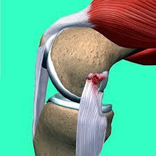 Dibujo de un ligamento lateral interno lesionado