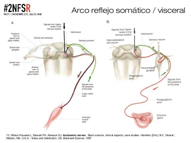 Imagen que muestra un esquema del reflejo viscerosomático