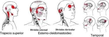 Musculatura que puede provocar cefalea tensional
