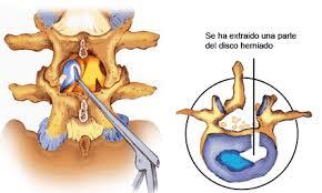 DISCECTOMIA en hernia discal