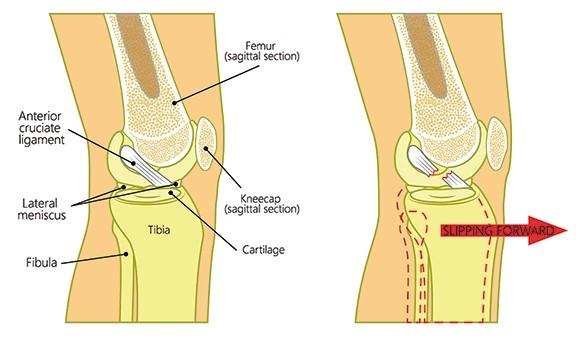 Anatomía de la rodilla y LCA